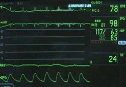 a heart monitor